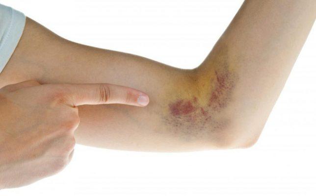 Không dùng Đông trùng hạ thảo cho người rối loạn đông máu