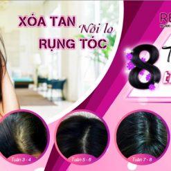 viên uống giảm rụng tóc Revetize kích thích mọc tóc giúp tóc chắc khỏe 8 tuần